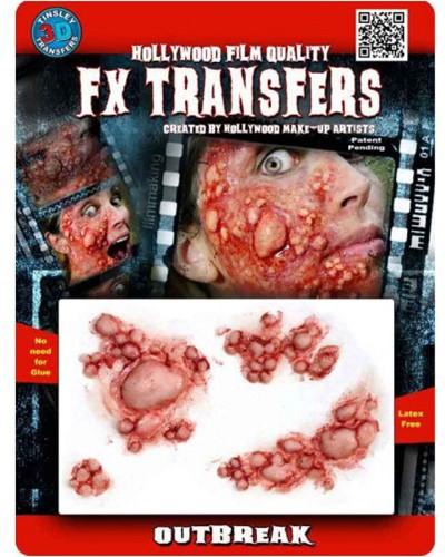 Professionele Wond FX - Virus Outbreak