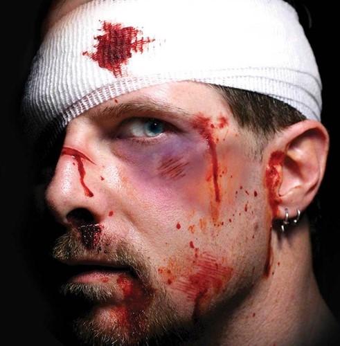 Wond Tattoo FX- Intensive Care