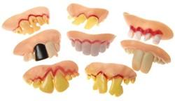 Gebitje met slechte/rare tanden
